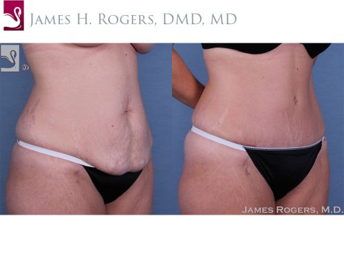 Abdominoplasty (Tummy Tuck) Case #32605 (Image 2)