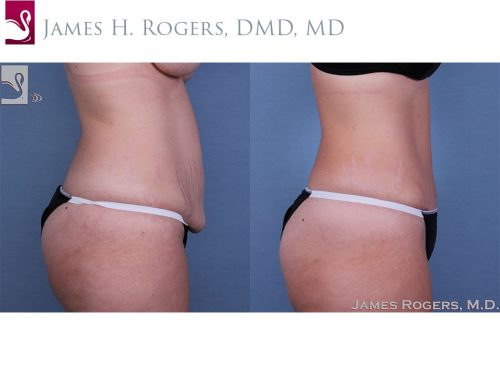 Abdominoplasty (Tummy Tuck) Case #32605 (Image 3)