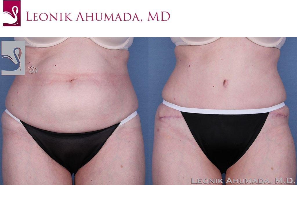 Abdominoplasty (Tummy Tuck) Case #33347 (Image 1)
