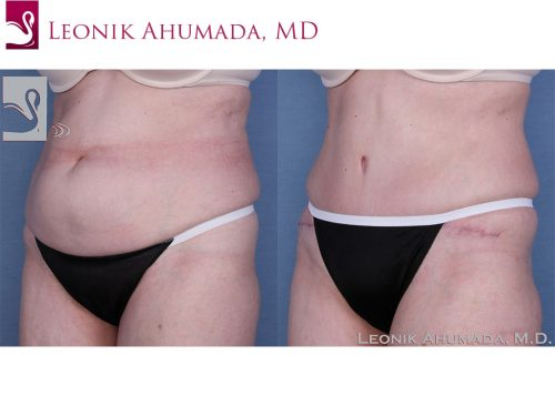 Abdominoplasty (Tummy Tuck) Case #33347 (Image 2)