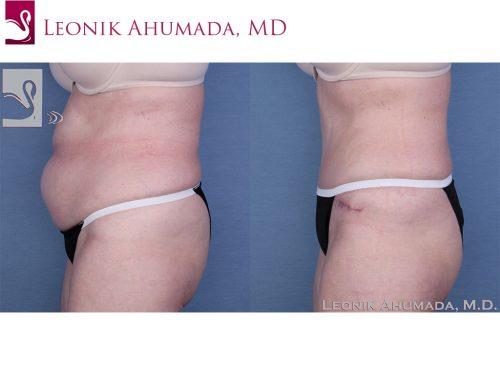Abdominoplasty (Tummy Tuck) Case #33347 (Image 3)