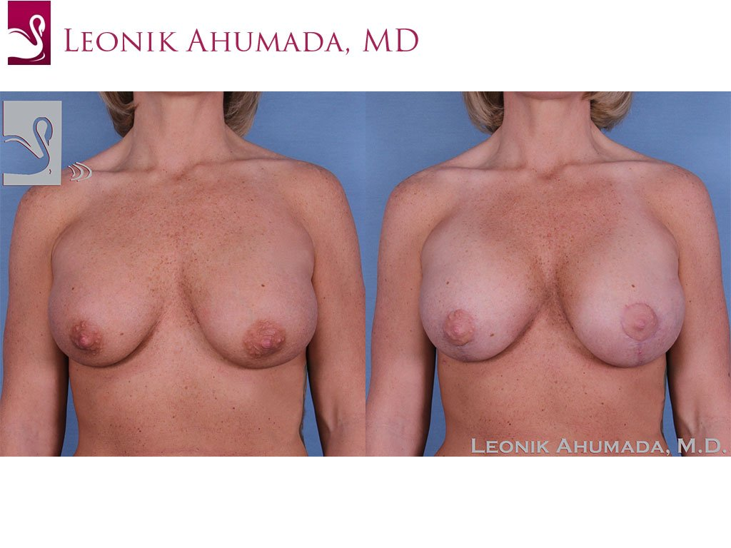 Breast Revisions Case #37955 (Image 1)