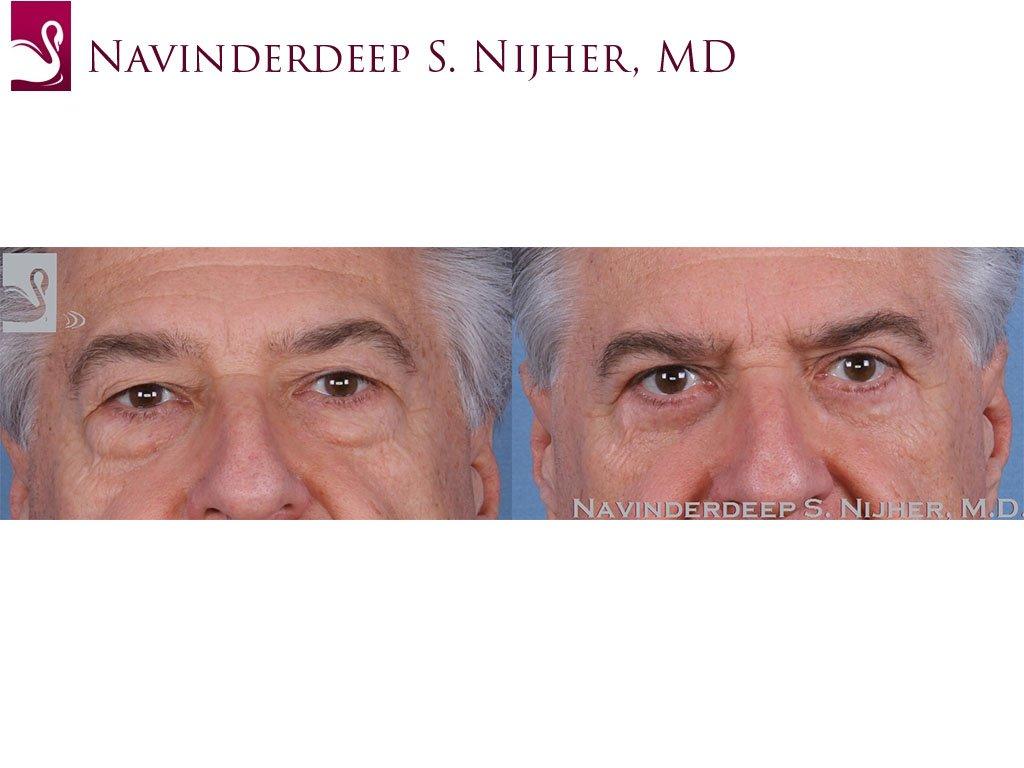 Eyelid Surgery Case #56880 (Image 1)