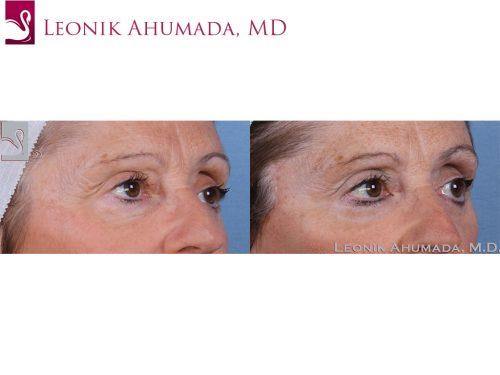 Eyelid Surgery Case #58147 (Image 2)