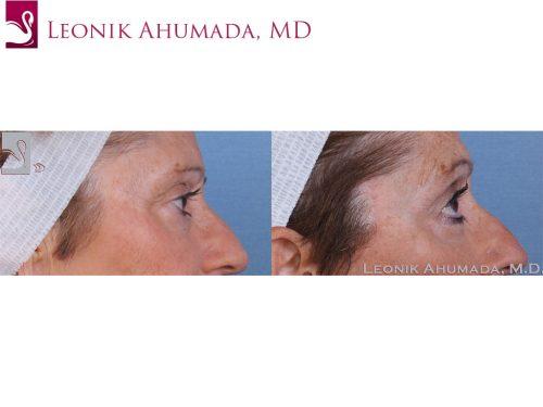 Eyelid Surgery Case #58147 (Image 3)