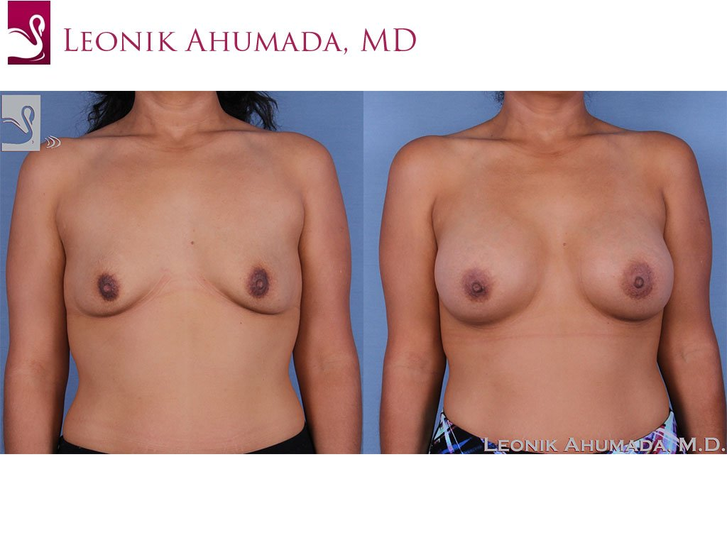 Breast Augmentation Case #58741 (Image 1)