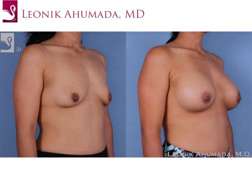 Breast Augmentation Case #58741 (Image 2)