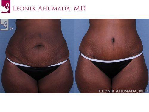 Abdominoplasty (Tummy Tuck) Case #40975 (Image 1)