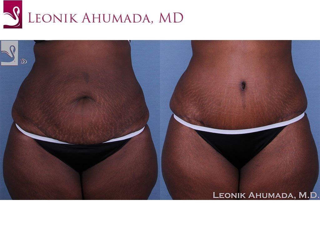Abdominoplasty (Tummy Tuck) Case #40975 (Image 1)