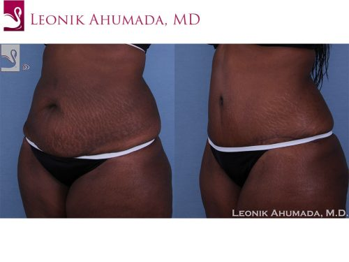 Abdominoplasty (Tummy Tuck) Case #40975 (Image 2)