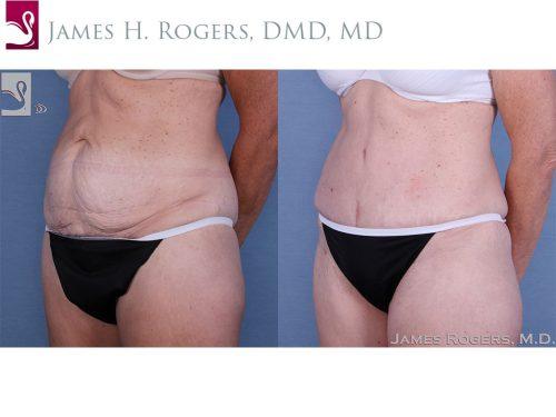 Abdominoplasty (Tummy Tuck) Case #58418 (Image 2)