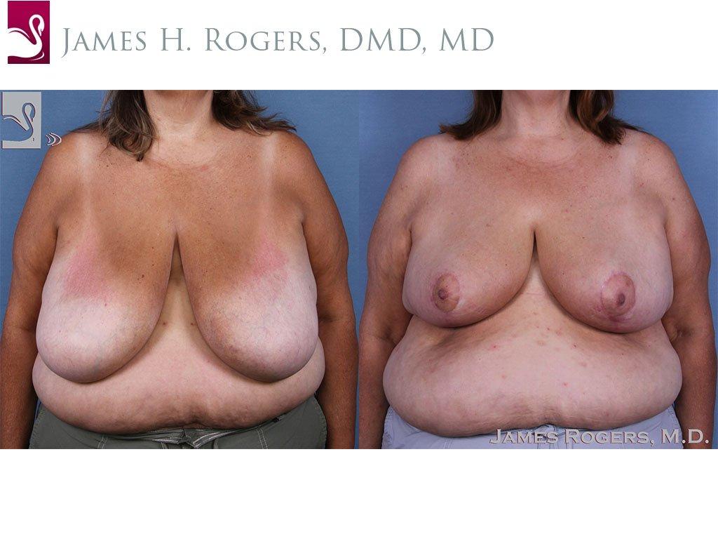 Female Breast Reduction Case #58784 (Image 1)