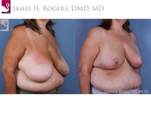 Female Breast Reduction Case #58784 (Image 2)