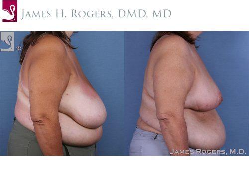 Female Breast Reduction Case #58784 (Image 3)