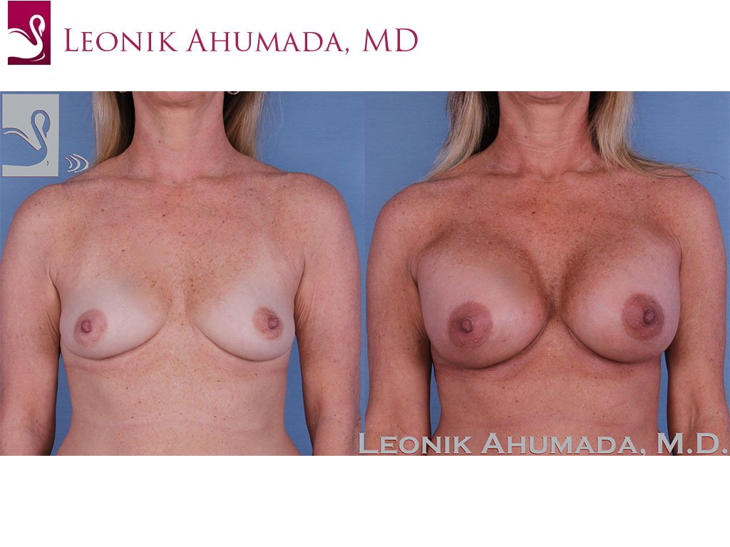 Breast Augmentation Case #59422 (Image 1)