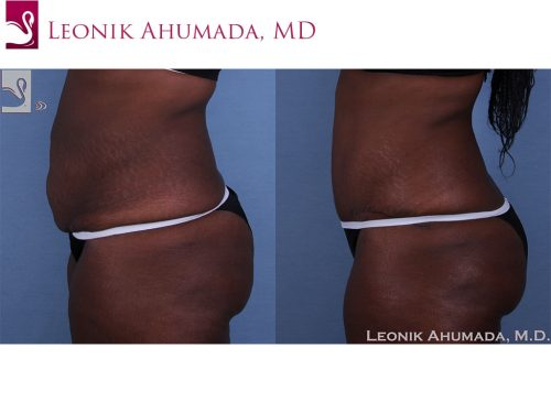 Abdominoplasty (Tummy Tuck) Case #40975 (Image 3)