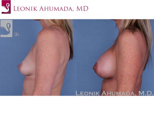 Breast Augmentation Case #59422 (Image 3)