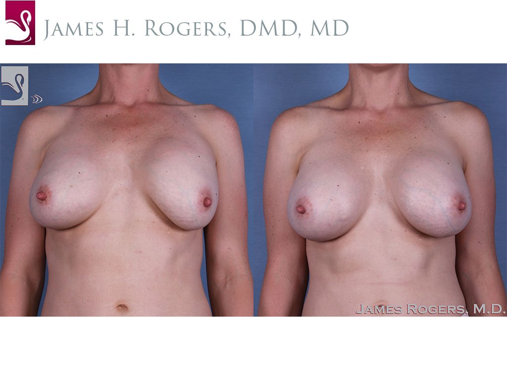 Breast Revisions Case #41484 (Image 1)