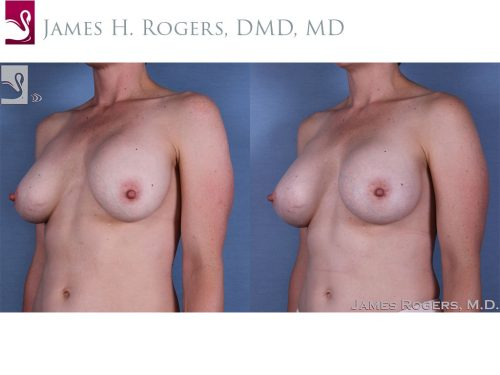 Breast Revisions Case #41484 (Image 2)