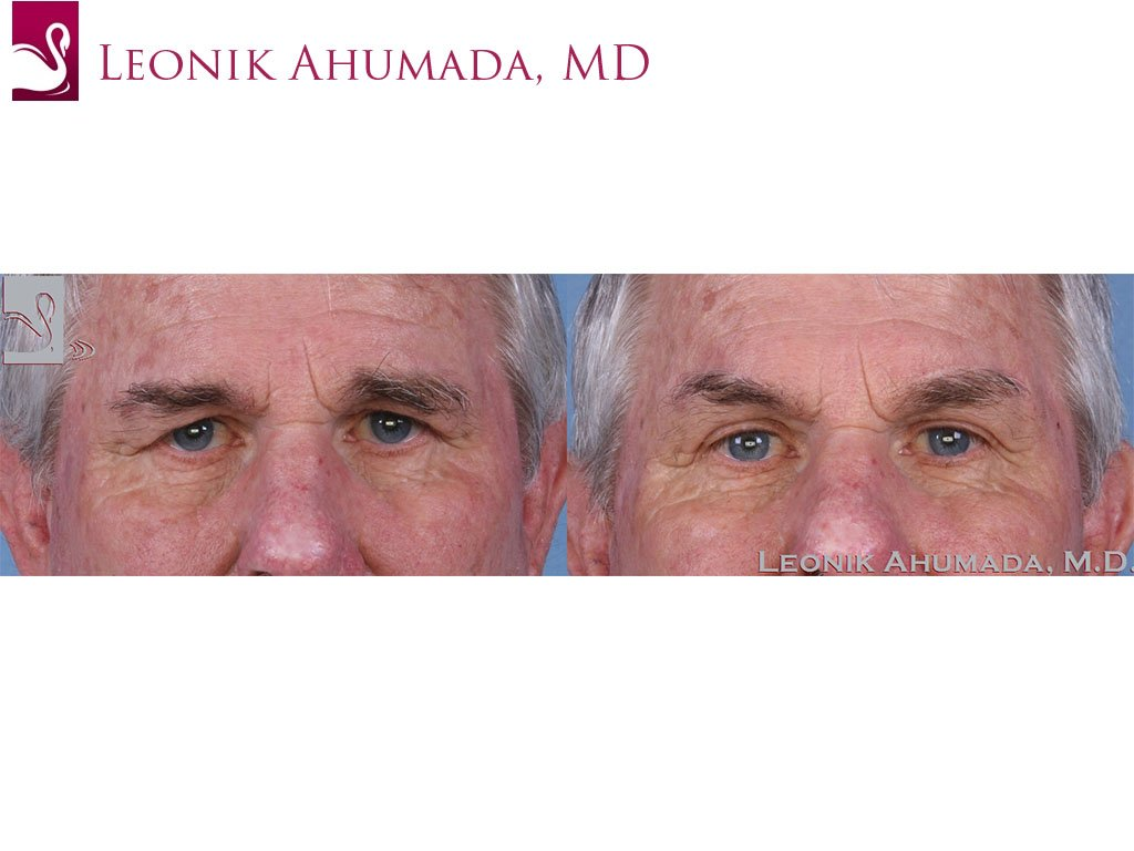 Eyelid Surgery Case #43616 (Image 1)