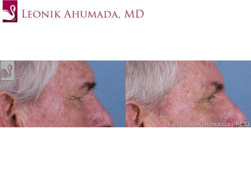 Eyelid Surgery Case #43616 (Image 3)