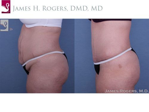 Abdominoplasty (Tummy Tuck) Case #49214 (Image 3)