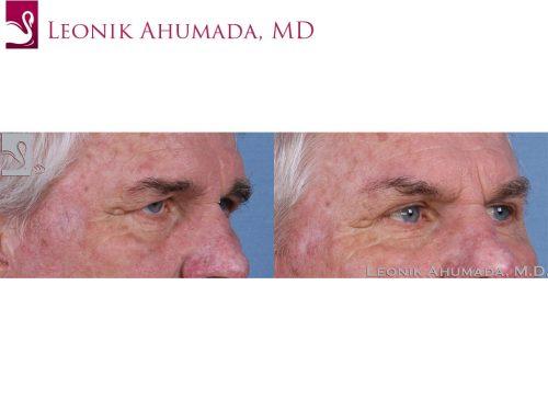 Eyelid Surgery Case #43616 (Image 2)