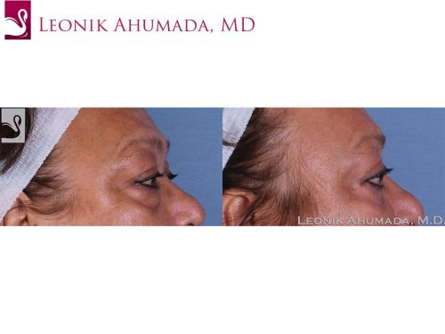 Eyelid Surgery Case #58346 (Image 3)