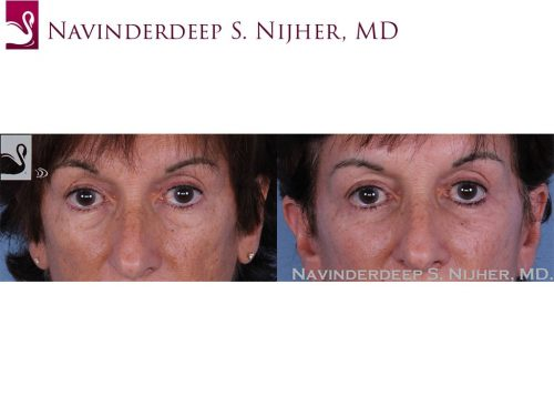 Before and after image of a real plastic surgery procedure performed by our surgeons.