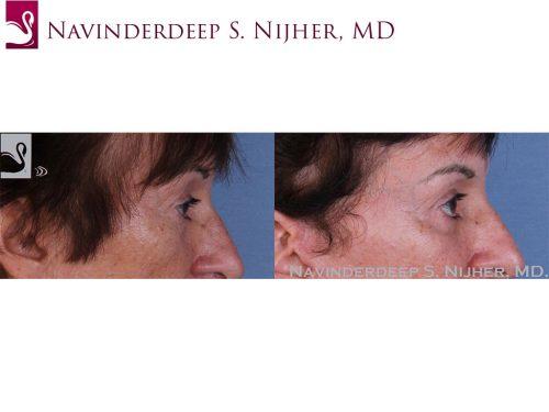 Eyelid Surgery Case #58359 (Image 3)