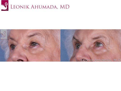Eyelid Surgery Case #61042 (Image 2)