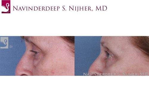 Eyelid Surgery Case #61075 (Image 3)