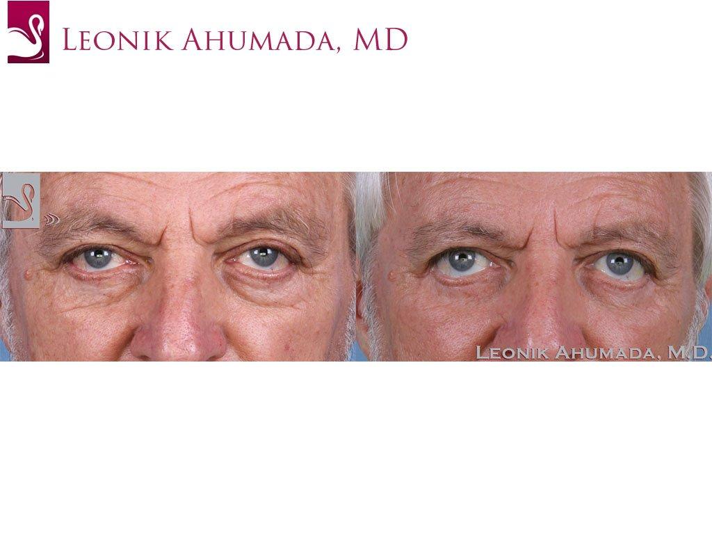 Eyelid Surgery Case #59887 (Image 1)