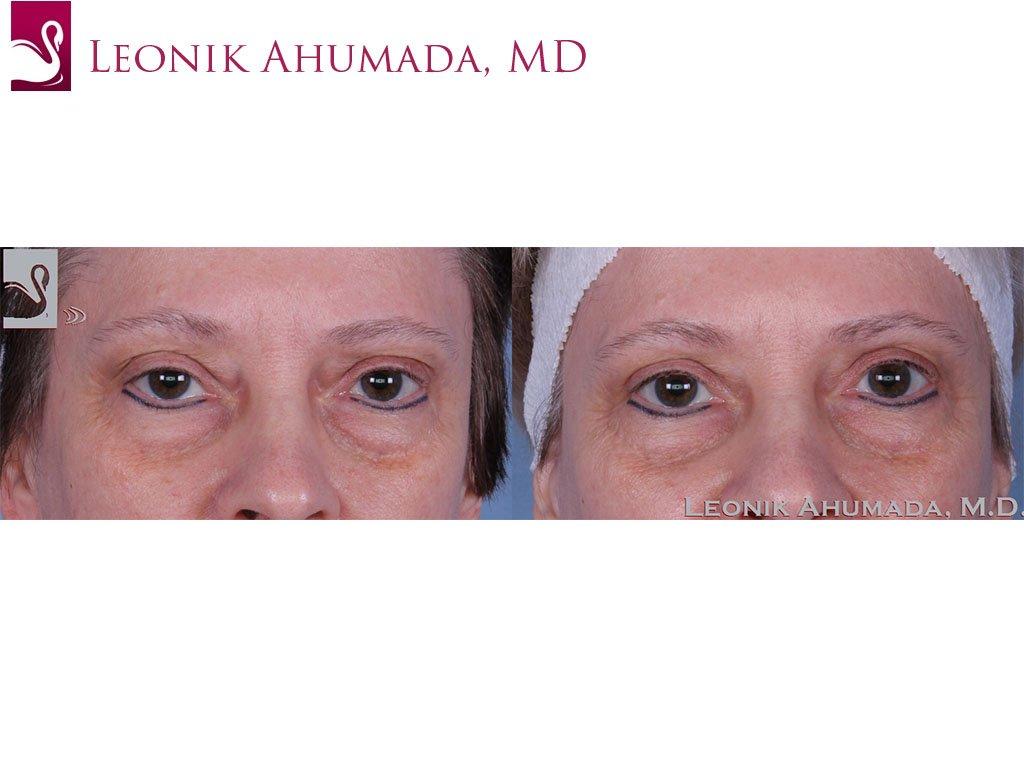Eyelid Surgery Case #59629 (Image 1)