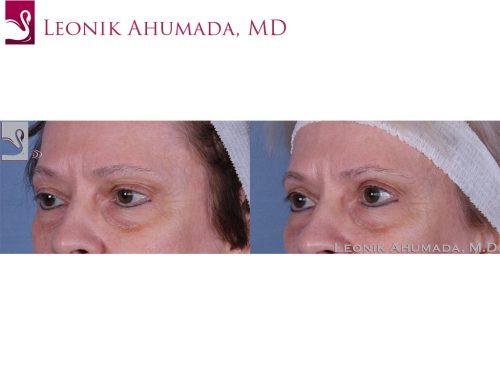 Eyelid Surgery Case #59629 (Image 2)