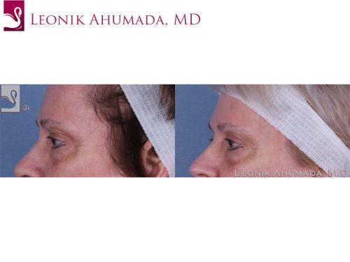 Eyelid Surgery Case #59629 (Image 3)