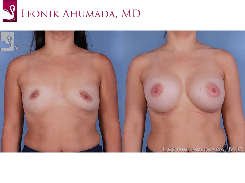 Breast Augmentation Case #61701 (Image 1)