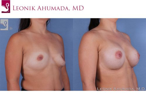 Breast Augmentation Case #61701 (Image 2)