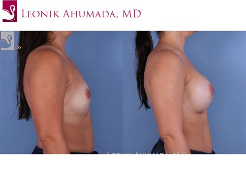 Breast Augmentation Case #61701 (Image 3)