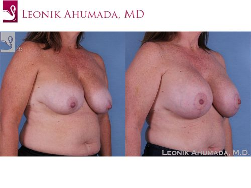Breast Augmentation with Mastopexy (Breast Lift) Case #58041 (Image 2)