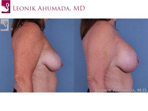 Breast Augmentation with Mastopexy (Breast Lift) Case #58041 (Image 3)