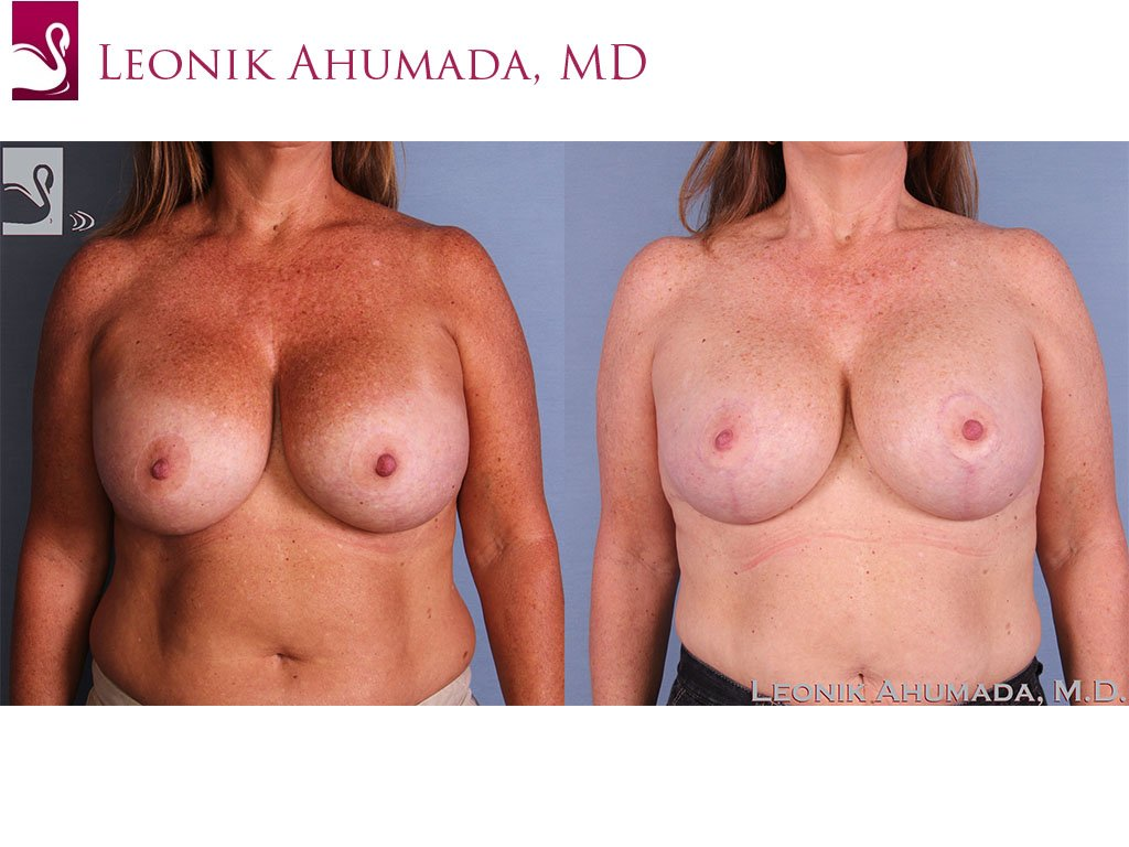 Breast Revisions Case #58041 (Image 1)