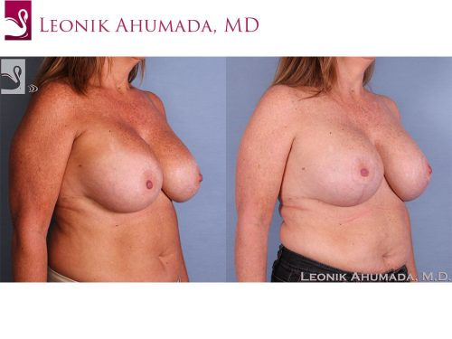 Breast Revisions Case #58041 (Image 2)