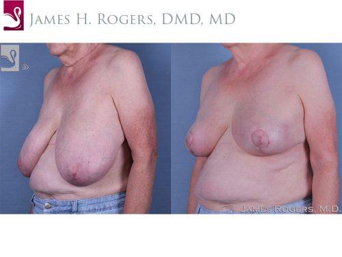 Female Breast Reduction Case #61041 (Image 2)