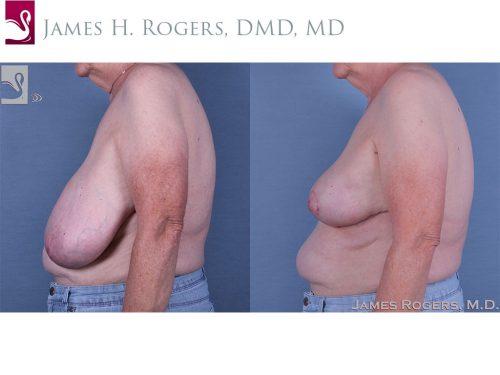 Female Breast Reduction Case #61041 (Image 3)