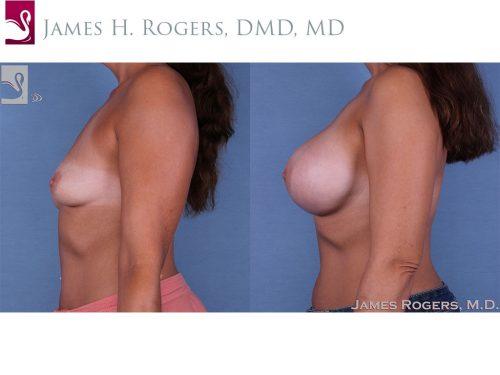 Breast Augmentation Case #61007 (Image 3)
