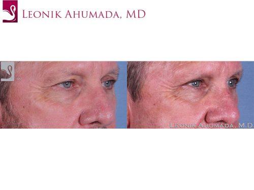 Eyelid Surgery Case #61963 (Image 2)