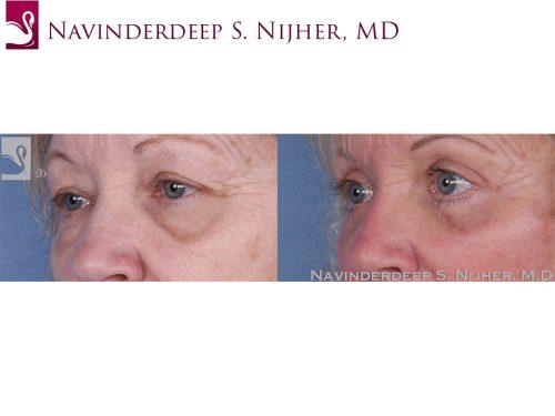 Eyelid Surgery Case #31789 (Image 2)