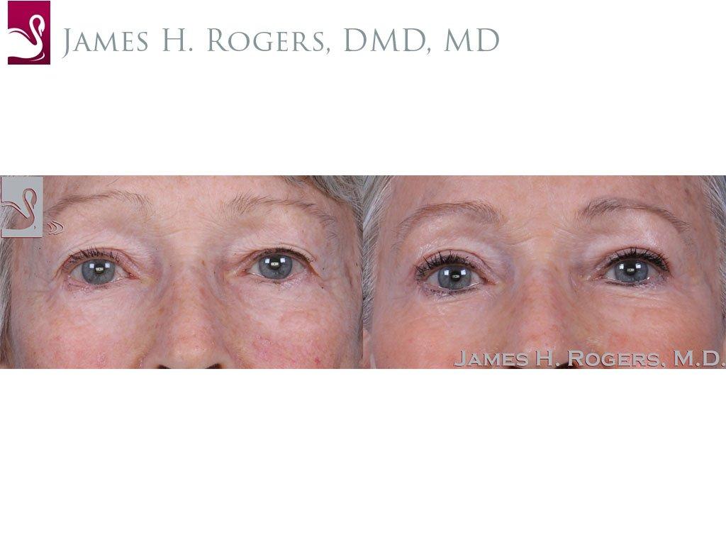 Eyelid Surgery Case #60032 (Image 1)