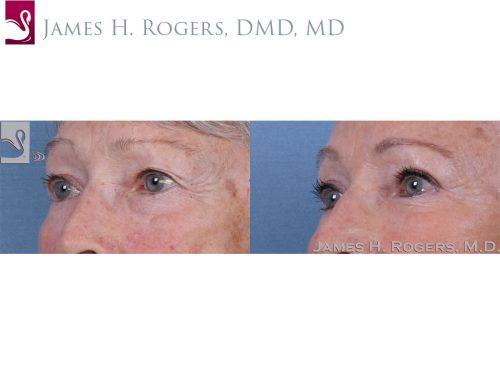 Eyelid Surgery Case #60032 (Image 2)